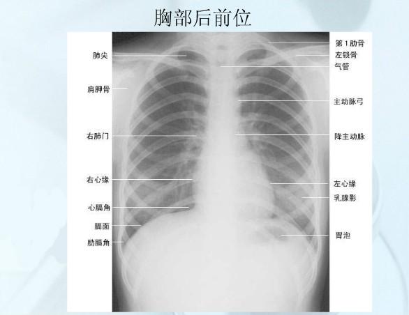 人体肌肉_人体胸廓解剖图-人体解剖图,_医学图库