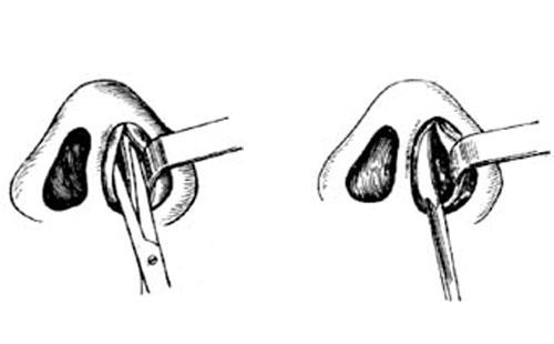鼻中隔弯曲手术_鼻中隔矫正术图解-手术图解,_医学图库